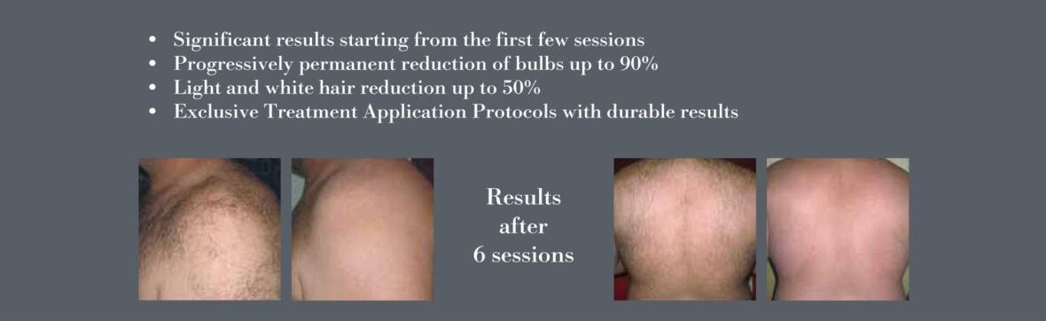 Diode laser in San Diego California, Results